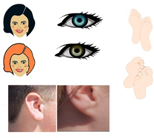 Natural Hair Colour Shape Of The Ear Lobe Eye And Feet Are Examples Inherited Traits
